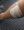Alex' leg treated at hospital